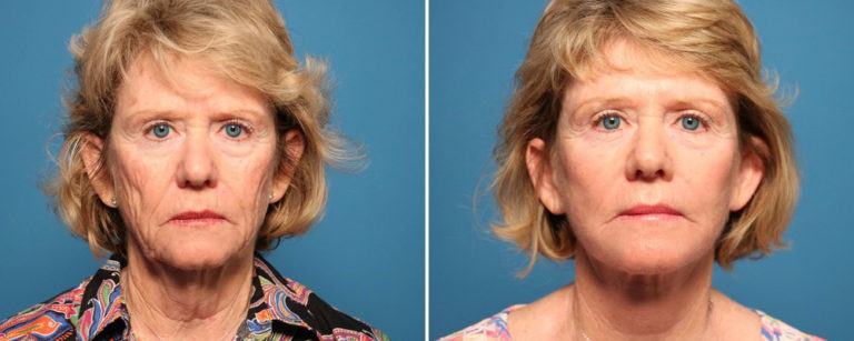 Sarasota-Plastic-Surgery-Facelift-results1