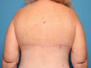 After body contouring back Sarasota FL