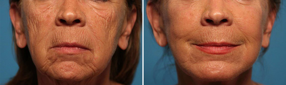 Before and after facial fat grafting
