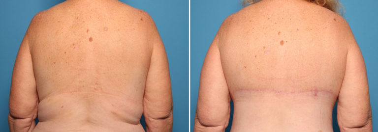 Before and after body lift