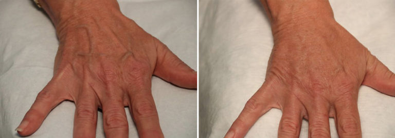 Before and after hand rejuvenation