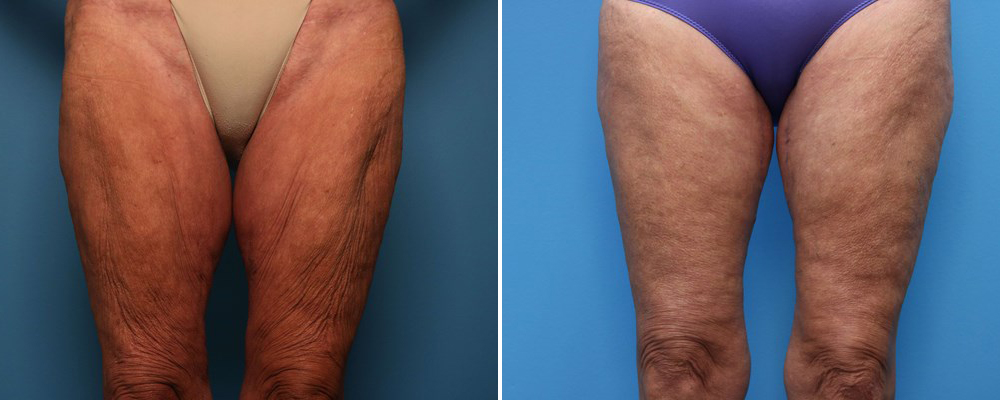 Before and after thigh lift