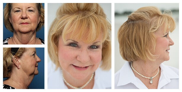 Patient before and after facelift