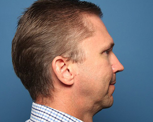 Before chin augmentation