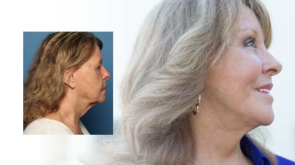 Alice before and after face lift
