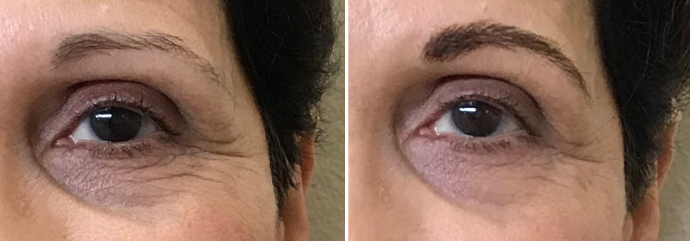 Before and after of permanent makeup