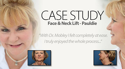 Patient Pauldie before and after neck lift