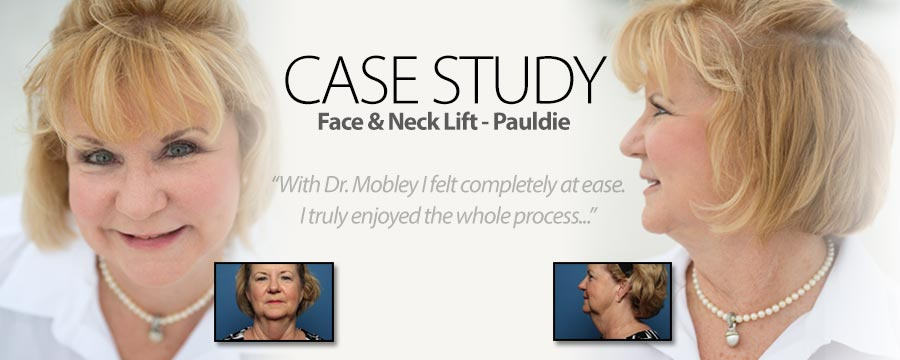 Before and after of patient Pauldie's face and neck lift